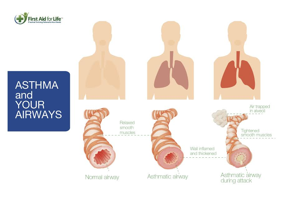 how to use doterra breathe for asthma