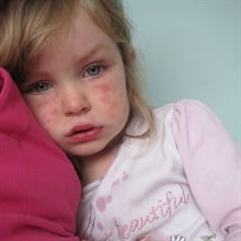 Meningitis – Can kill within 4 hours and can affect anyone! What it is and what to look out for