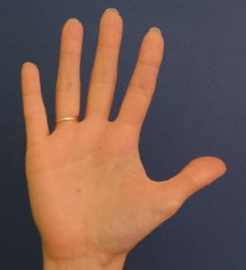 1% burn size of your palm