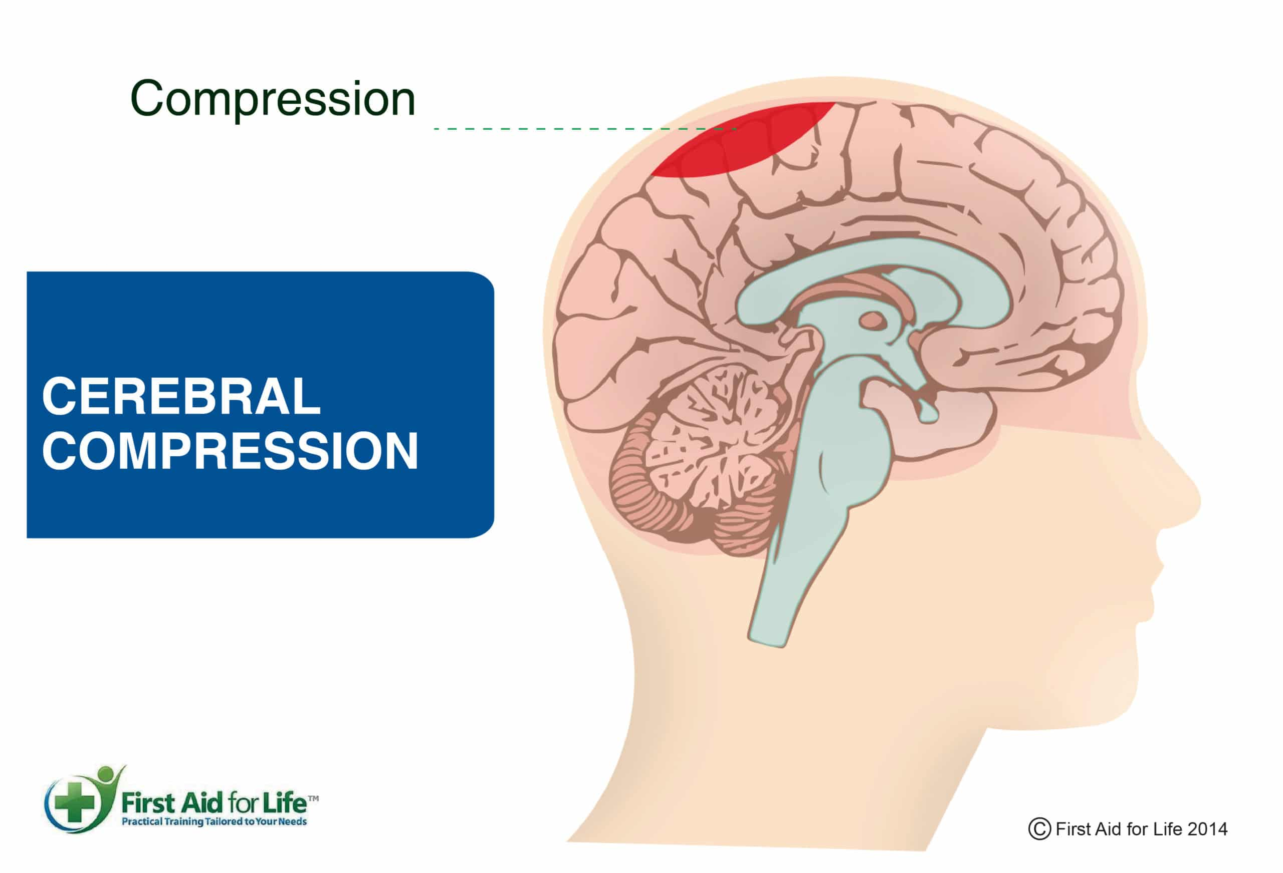 First Aid: what to do with concussion 57