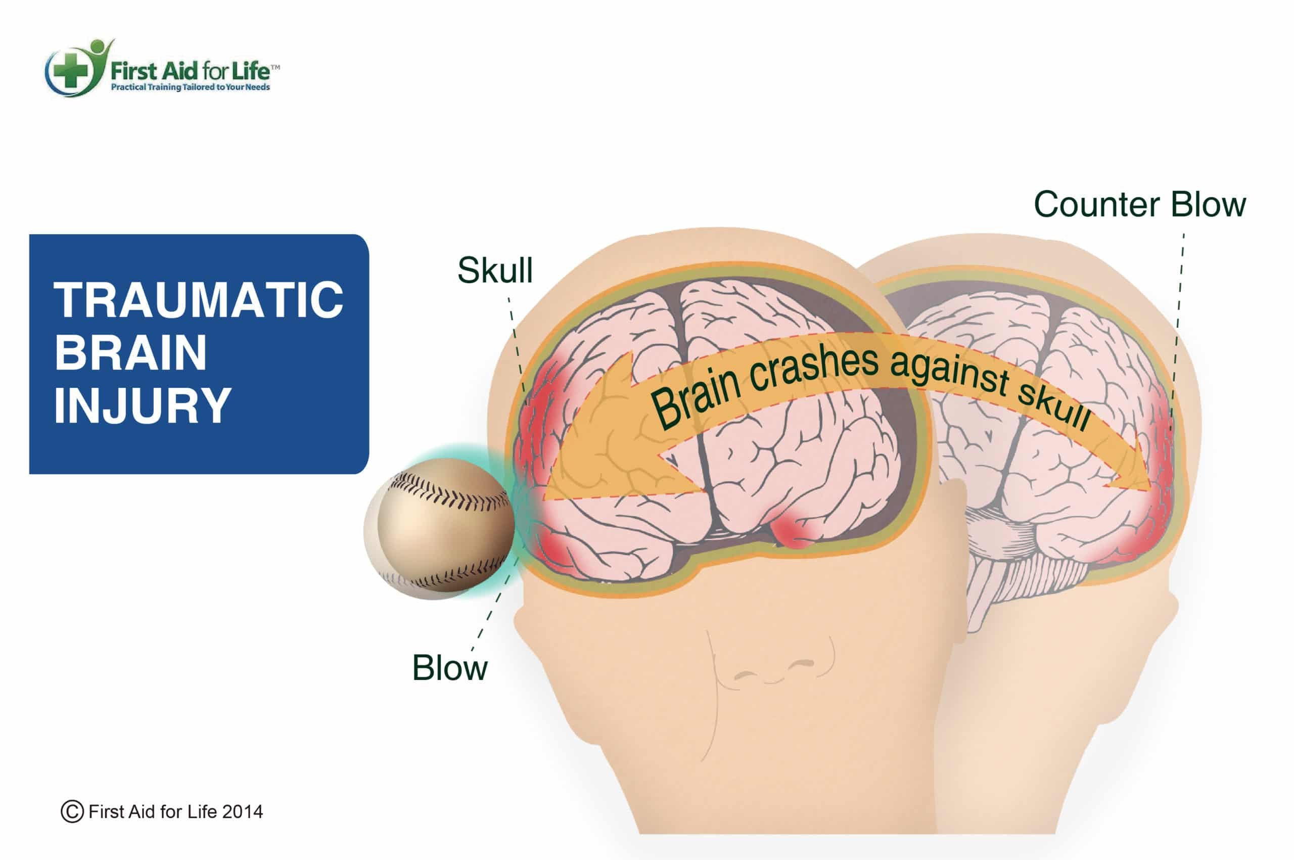 Concussion and traumatic brain injury