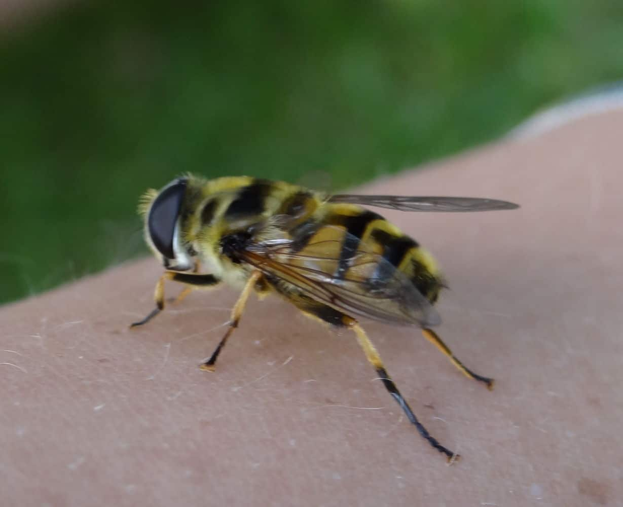 bee and wasp stings