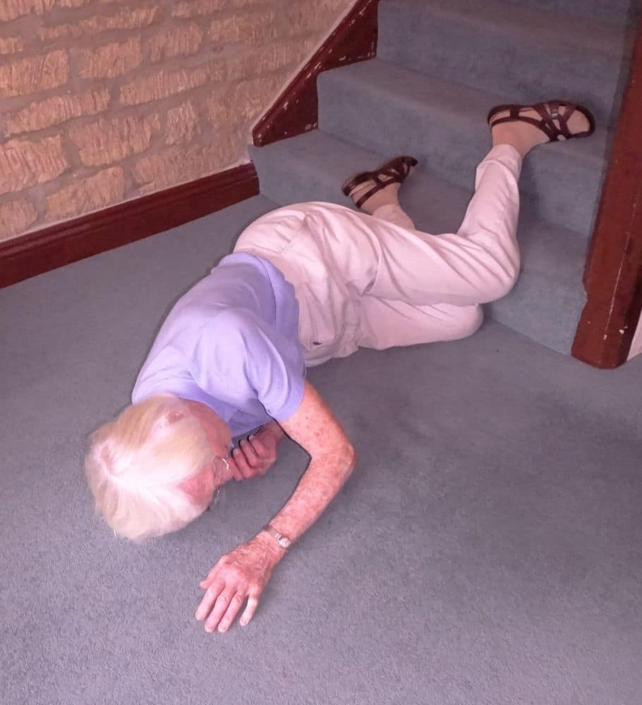 fell down the stairs and hurt my bum