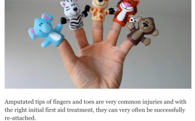 The Hippocratic Post – First Aid for Amputated Fingers