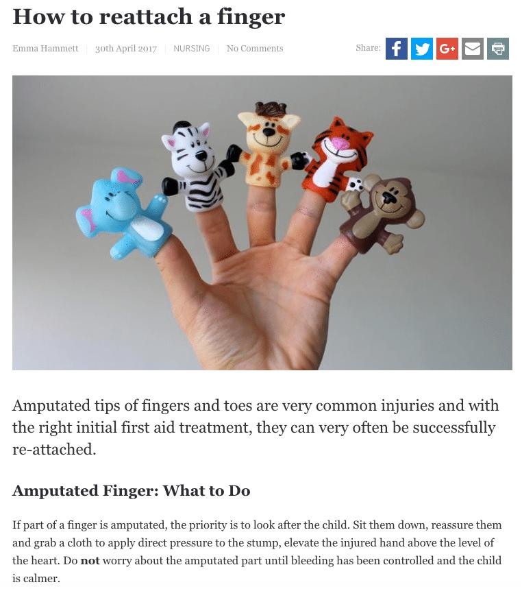Hippocratic Post Amputated finger
