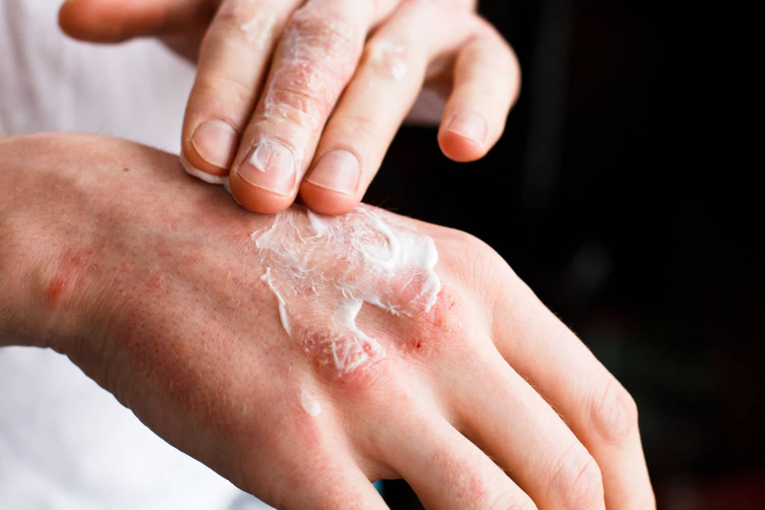 Paraffin-based skin creams are flammable - be careful