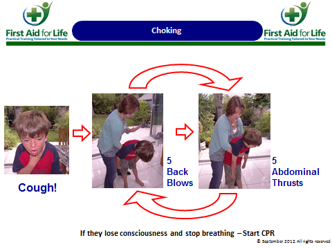 How to help a choking child