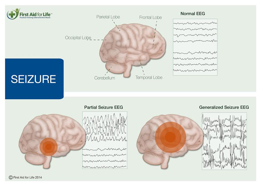 Seizures, convulsions and epilepsy and how to manage them