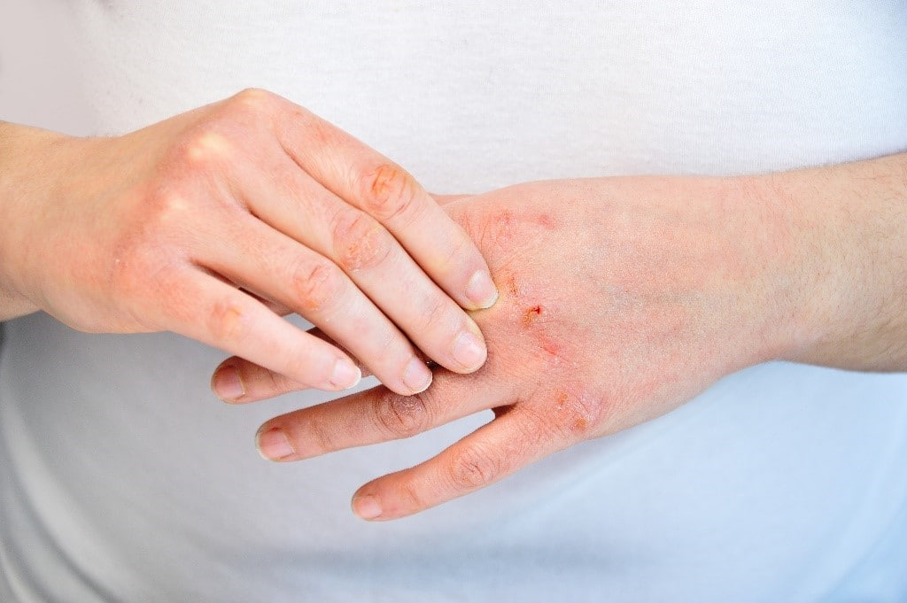 How to Avoid and Treat Dry and Chapped Hands - First Aid for Life