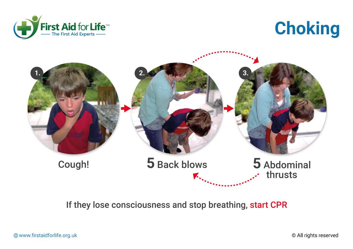 First Aid for Choking